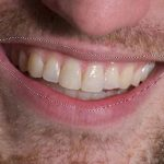 سفید کردن دندان با فتوشاپ